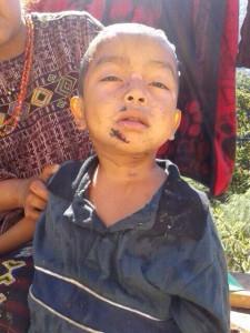 El pequeño Daniel Sánchez de tres años, atacado por un puma exhibe las lesiones que le dejó el felino.