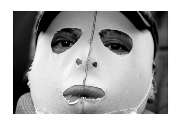 """Agustín Gómez Pérez, inmolado por decisión propia el pasado 5 de diciembre frente a las instalaciones del Congreso del Estado de Chiapas, para exigir la liberación de su tío Florentino Gómez Girón, hoy regresa a Chiapas y da conferencia de prensa después de haber estado internado en la ciudad de México durante siete meses. Dijo """"No me arrepiento, ni nos vendemos, ni nos rendimos y aqui seguimos, hasta la victoria siempre"""". Jacob García"""