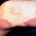 Lepra_thigh_demarcated_cutaneous_lesions_especial