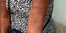Los síntomas más comunes son las manchas en la piel, por lo que invitan a que, si se presentan síntomas acudan a las unidades de salud por el tratamiento. Cortesía: Secretaría de Salud Chiapas.